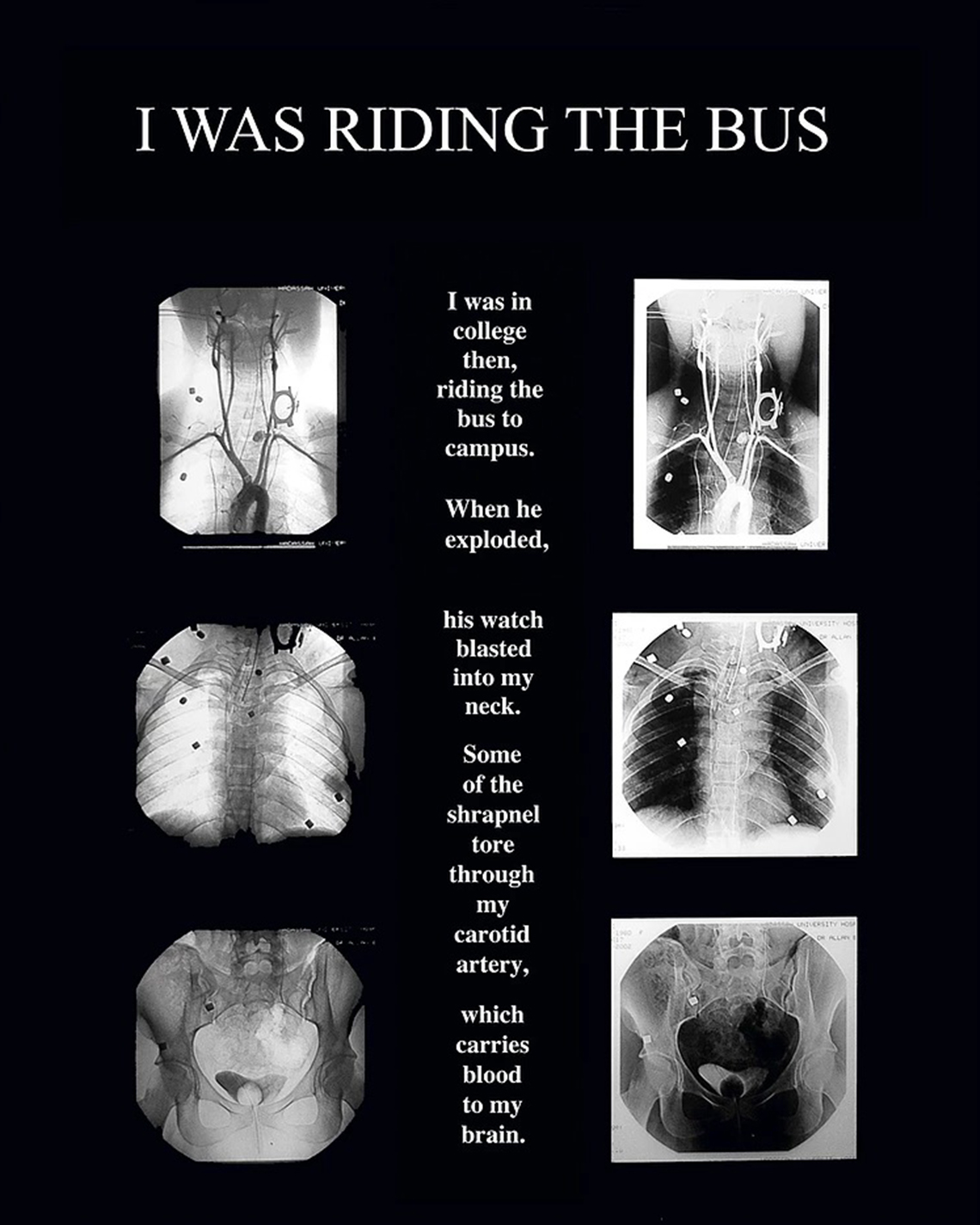 I was riding the bus, The X-Ray project, Diane Covert