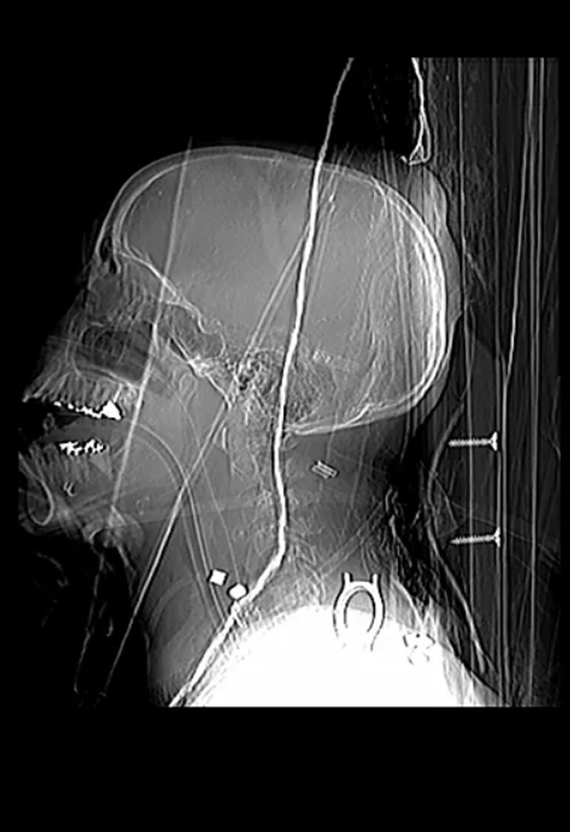 Carotid Artery Severed by Shrapnel, The X-Ray Project