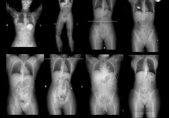 Figure Studies, The X-Ray Project, Diane Covert
