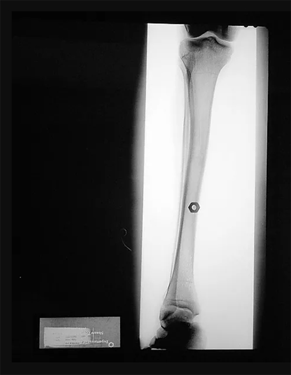 Hex nut into Calf Bone, The X-Ray Project, Diane Covert