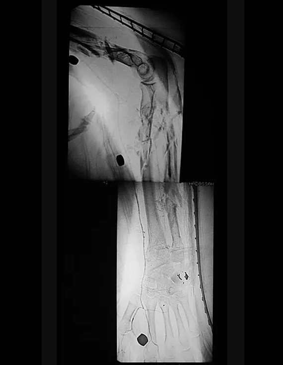Smashed Hand and Arm With Life Threatening Artery Damage, The X-Ray Project, Diane Covert