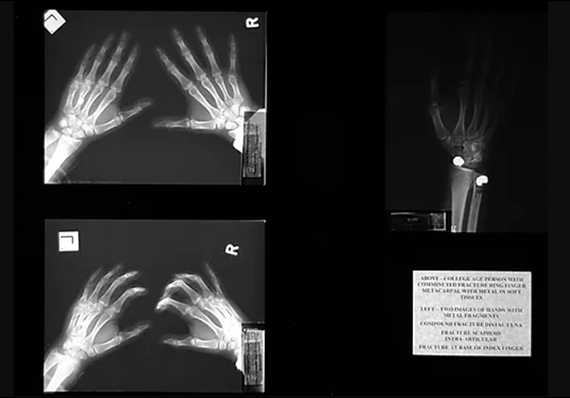 Three Hand Injuries, The X-Ray Project, Diane Covert