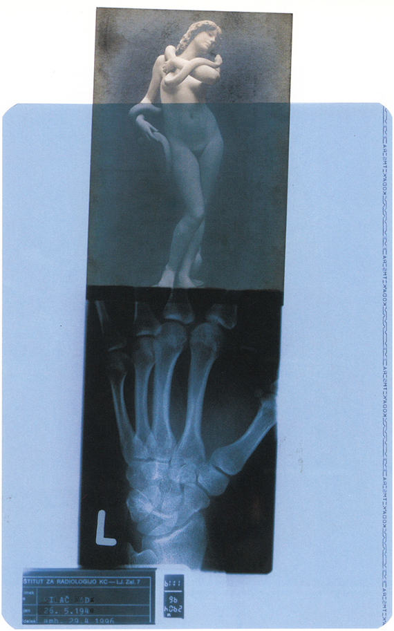Provocation, x-ray art,1996