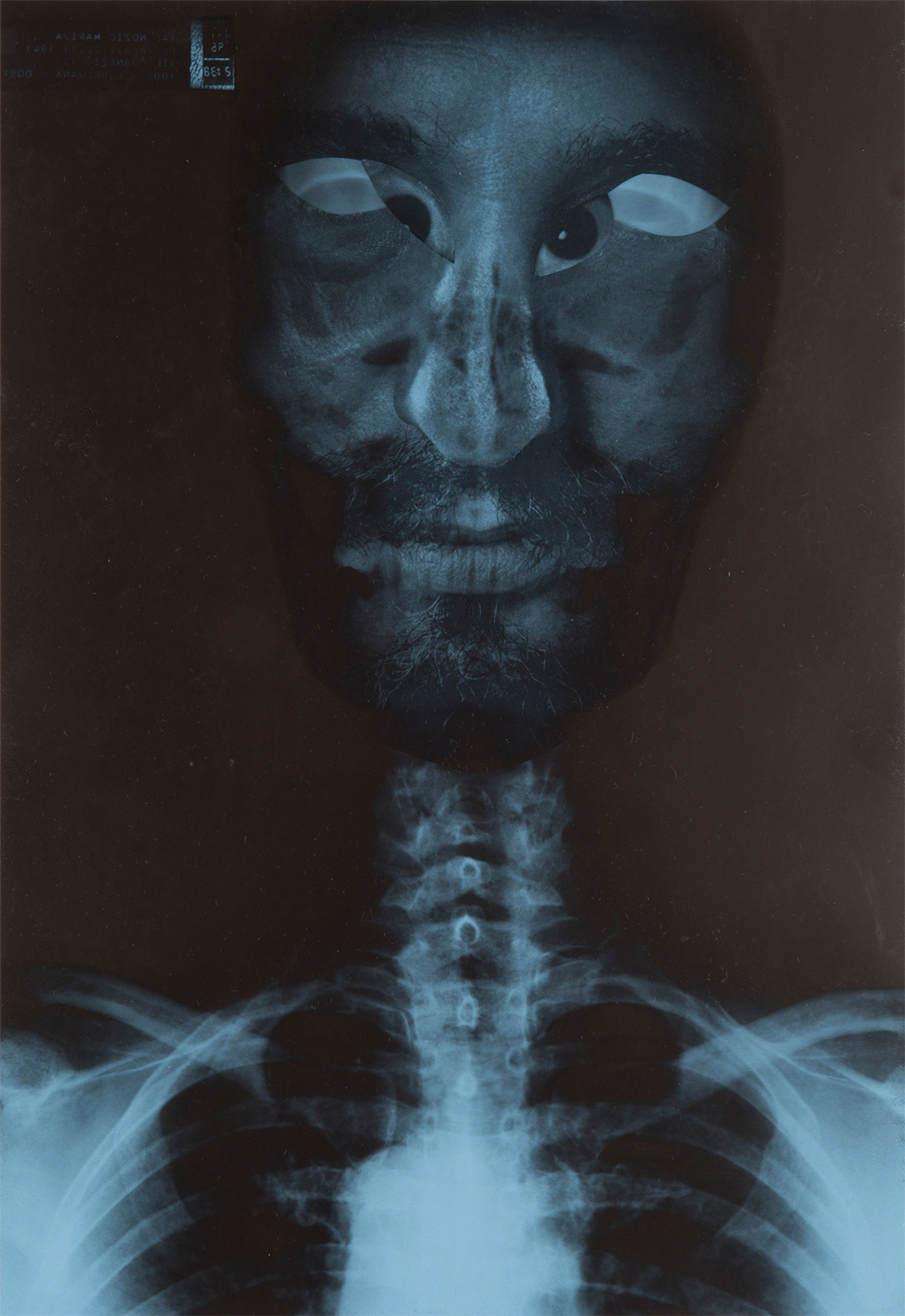 Seeing, x-ray art, Stane Jagodič, 1997, collage
